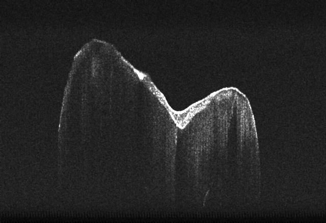 Tooth slice: Optical coherencetomography (OCT) image